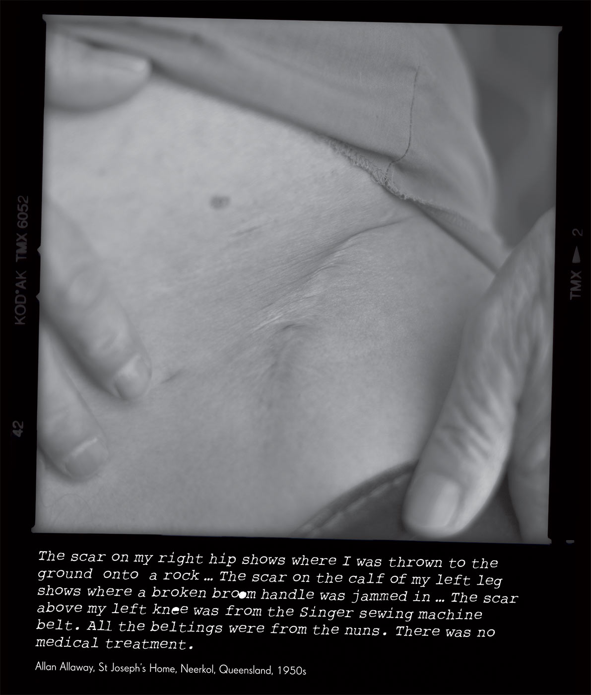 Black and white photo of a scar on a person's hip. The photo caption reads 'The scar on my right hip shows where I was thrown to the ground onto a rock ... The scar on the calf of my left leg shows where a broken broom handle was jammed in ... The scar above my left knee was from the Singer sewing machine belt. All the beltings were from the nuns. There was no medical treatment', attributed to 'Allan Allaway, St Joseph's Home, Neerkol, Queensland, 1950s'. - click to view larger image