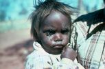 A young Aboriginal chilld with flies on their eyes and face. The child has a closed fist and is held by a partially visible adult.