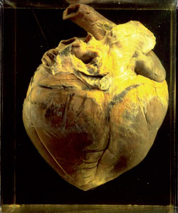 A preserved heart belonging to race horse Phar Lap.