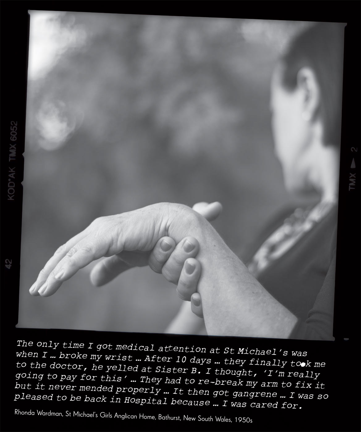Black and white photo of a women supporting the underside of her left wrist with her right hand. Both hands are elevated and the focal point of the photo. The photo caption reads 'The only time I got medical attention at St Michael's was when I ... broke my wrist ... After 10 days ... they finally took me to the doctor, he yelled at Sister B. I thought, 'I'm really going to pay for this' ... They had to re-break my arm to fix it but it never mended properly ... It then got gangrene ... I was so pleased to be back in Hospital because ... I was cared for.' attributed to 'Rhonda Wardman, St Michael's Girls Anglican Home, Bathurst, New South Wales, 1950s'. - click to view larger image