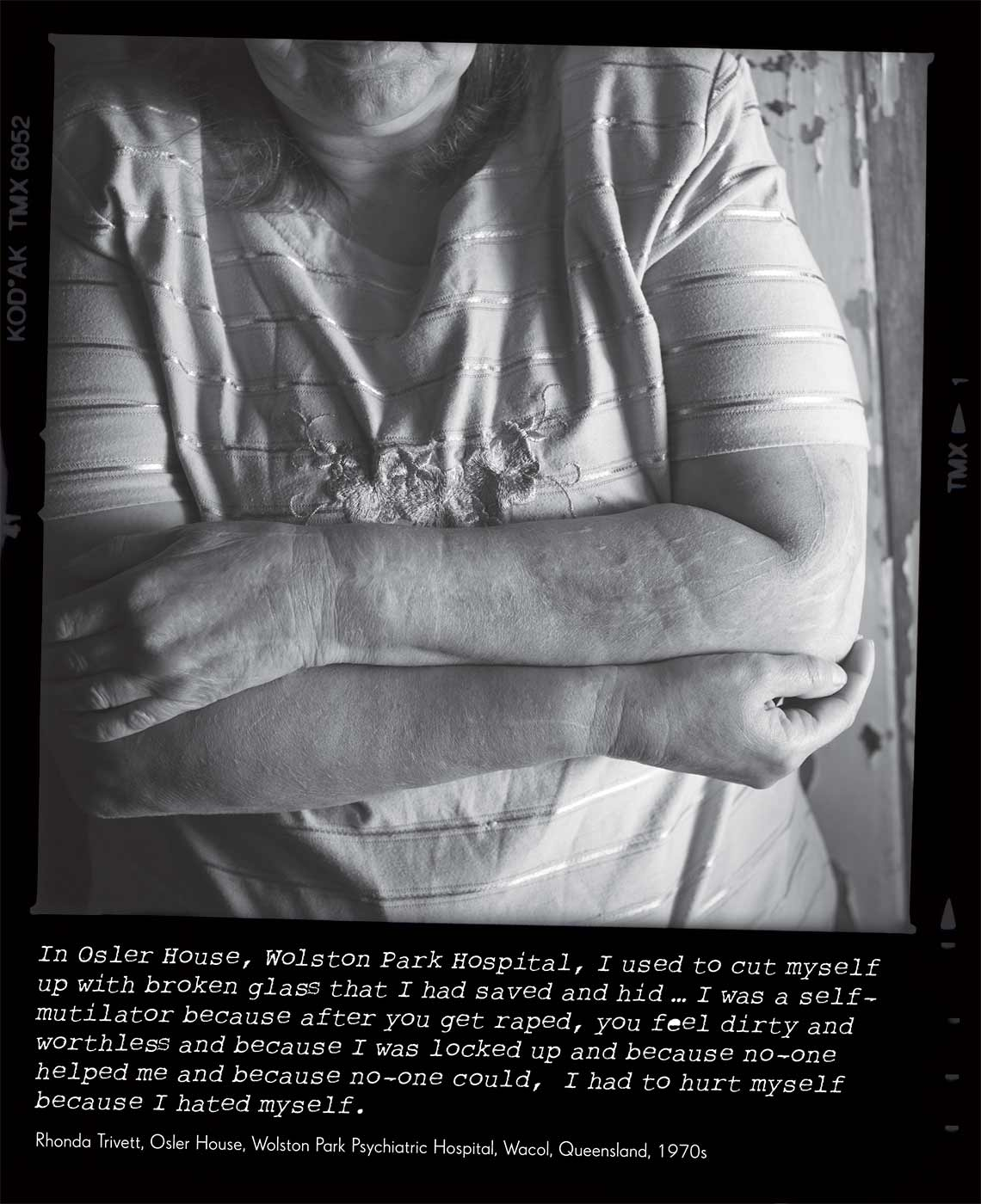 Black and white photo of a woman. She is standing with her arms folded and her face is not visible. The photo caption reads 'In Osler House, Wolston Park Hospital, I used to cut myself up with broken glass that I had saved and hid ... I was a self-mutilator because after you get raped, you feel dirty and worthless and because I was locked up and because no-one helped me and because no-one could, I had to hurt myself because I hated myself' attributed to 'Rhonda Trivett, Osler House, Wolston Park Psychiatric Hospital, Wacol, Queensland, 1970s'. - click to view larger image