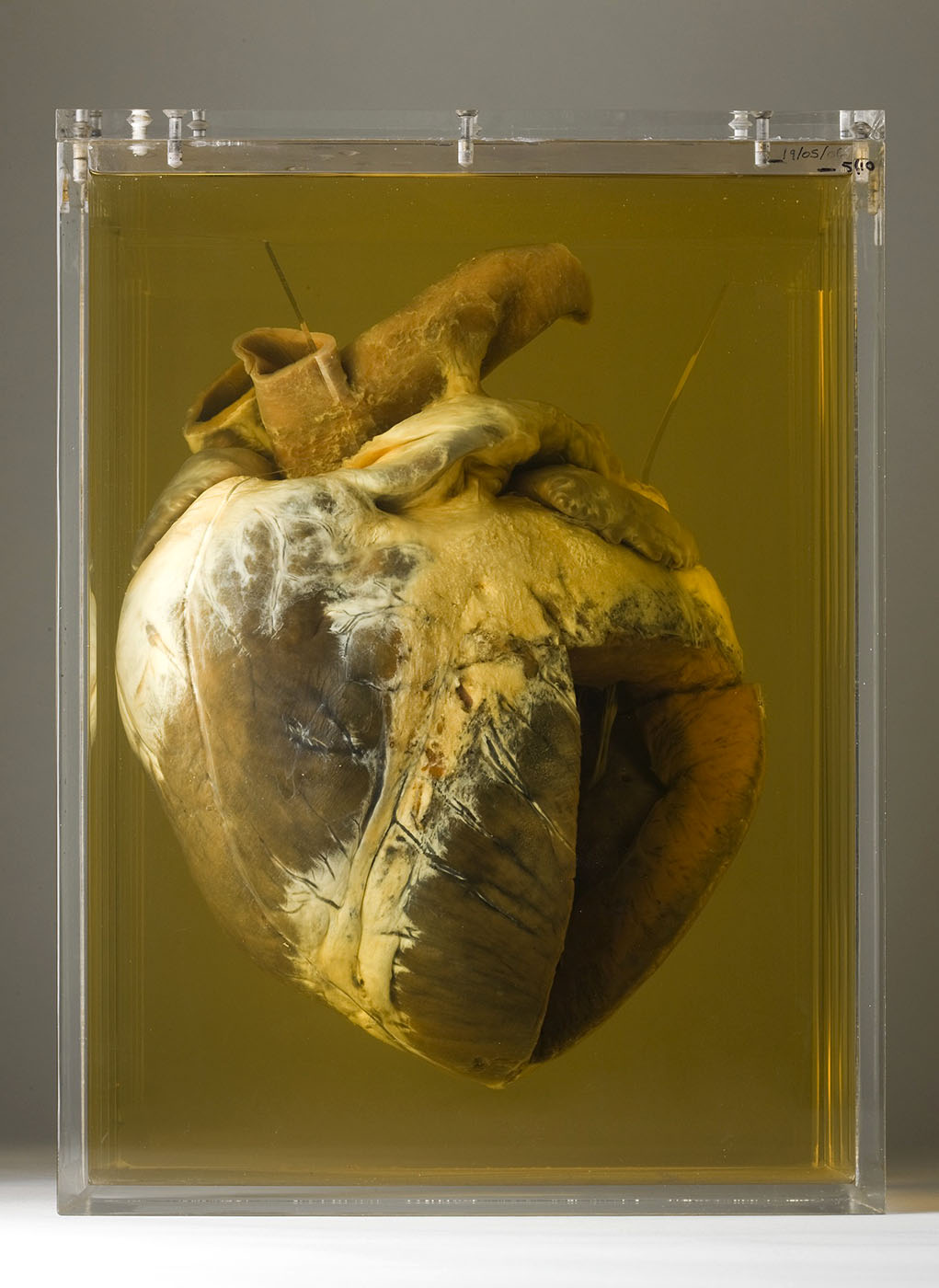 Horses heart suspended in a clear solution in a clear case. The bottom right quarter of the heart has been removed.  - click to view larger image