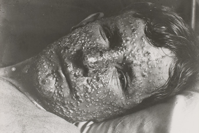 portrait of man lying in bed, his expressionless face thickly covered in pustules.