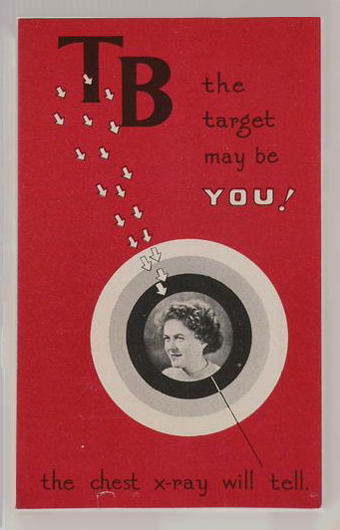 A red-covered pamphlet titled 'TB the target may be YOU!', with the words 'the chest x-ray will tell' at the bottom. A smiling woman is pictured inside a black, grey and white target, with a series of arrows pointed towards it. - click to view larger image