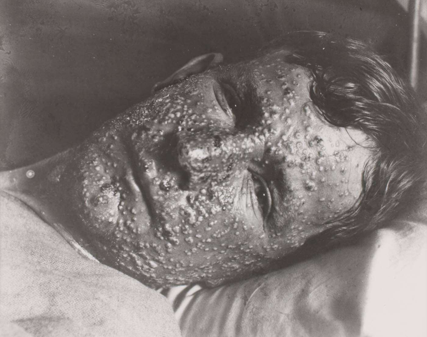 Portrait of man lying in bed, his expressionless face thickly covered in pustules. - click to view larger image