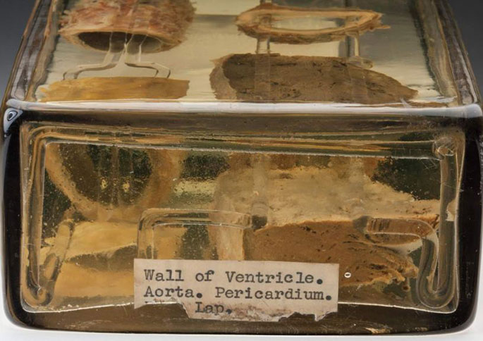 Wet specimens jar with label text 'Wall of Ventricle. Aorta. Pericardium. [section of label missing] Lap.'